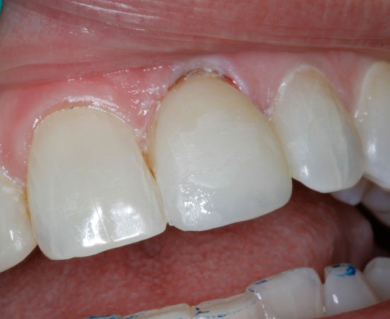 Dental Veneers - After