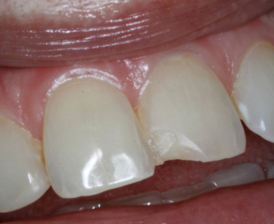 Dental Veneers - Before